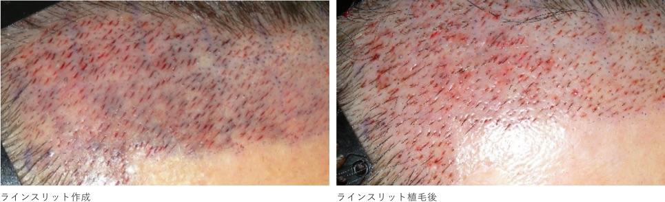 ラインスリット(線状)毛穴作成による傷痕の最小限化