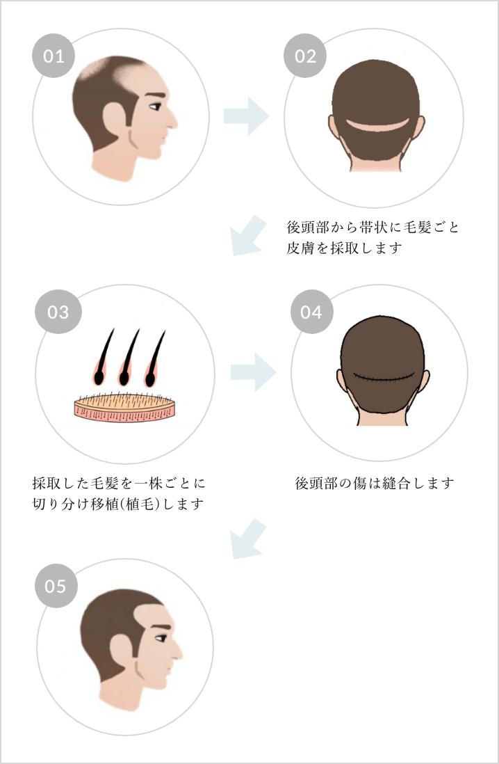 FUT植毛