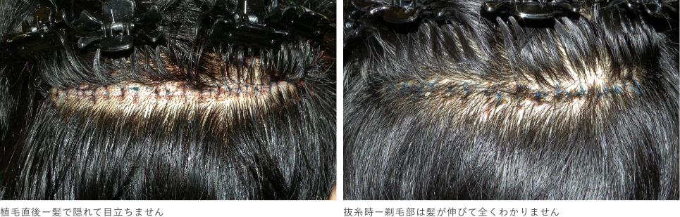 FUT植毛(Follicular Unit Transplantation)