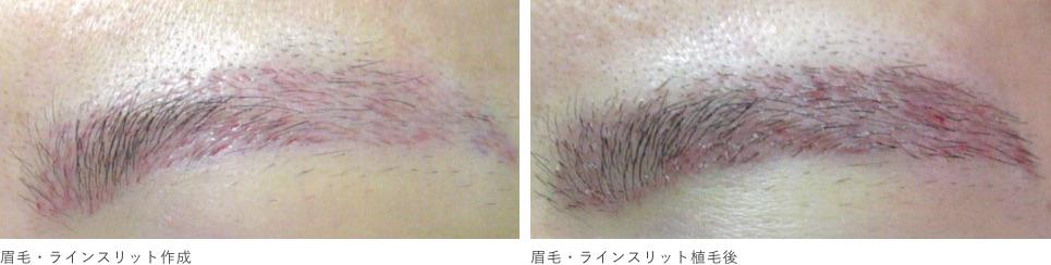 高密度かつ精密な「毛の向き・流れ・角度」の再現が重要です。