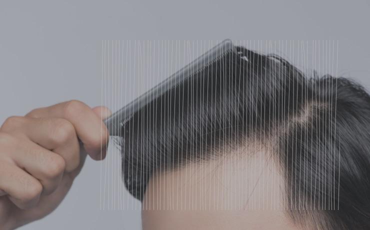 自毛植毛手術