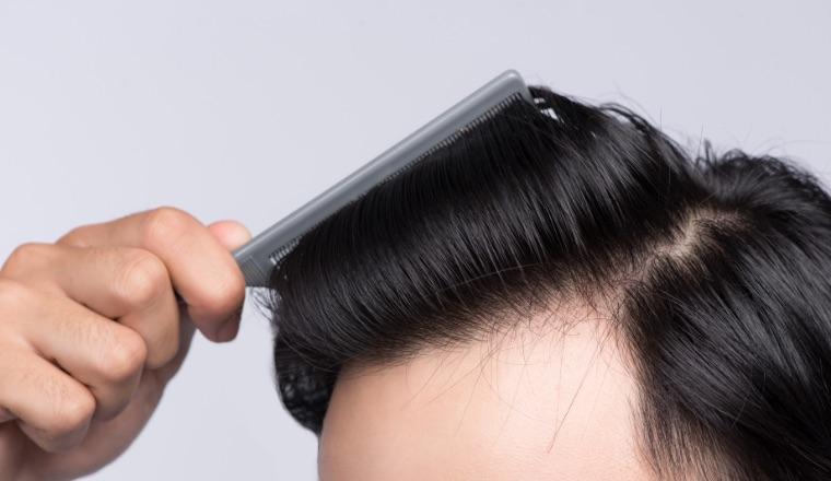 AGA・薄毛診療